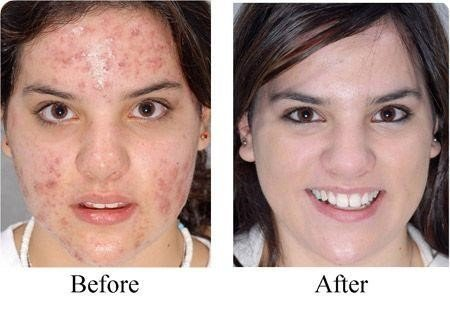 cure acne fast